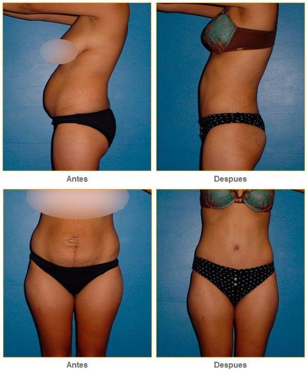 consejos practicos para quemar grasa abdominal